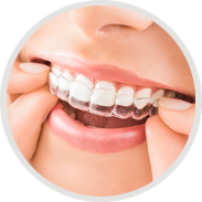 Invisalign Clear Aligners